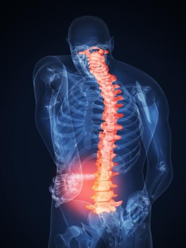 Лечение боли в спине